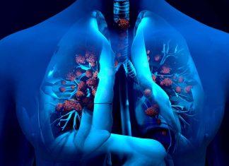 Vann i lungene diagnose