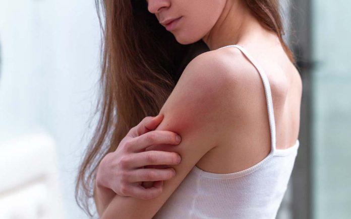 Allergisk mot myggstikk